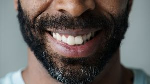 Closeup of smiling man's mouth - Dental Implants Alameda CA