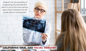 Female doctor looking at a patient's x-rays because of Gingivitis or periodontal disease, with text - Alameda, CA